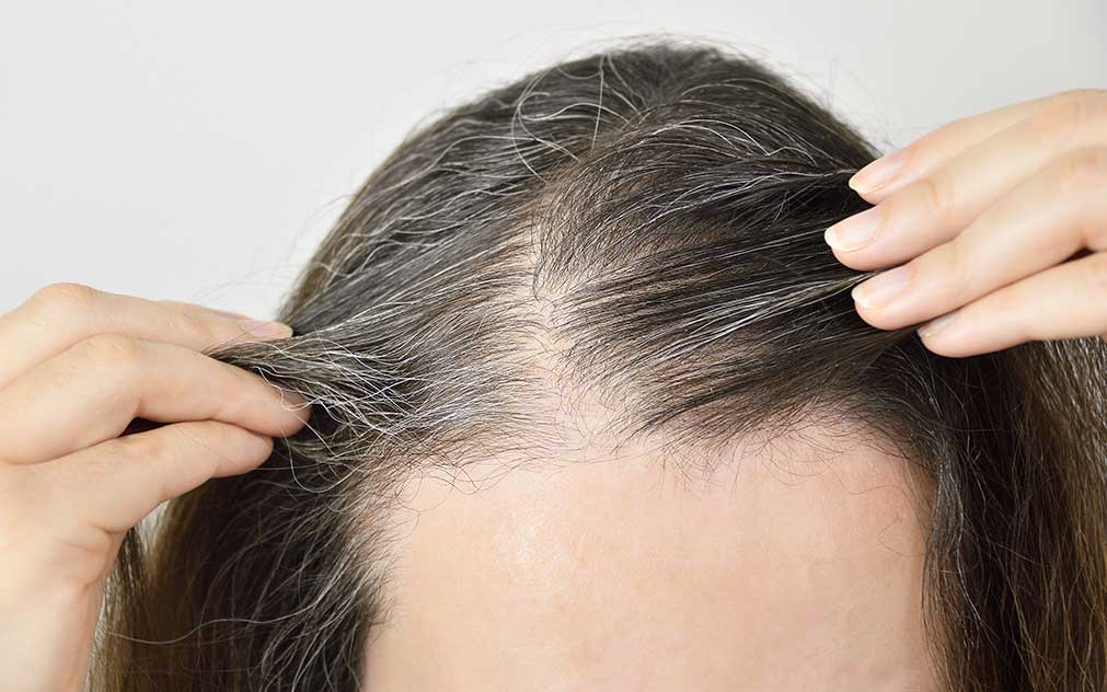 Tips for people with Sparse Hair Density