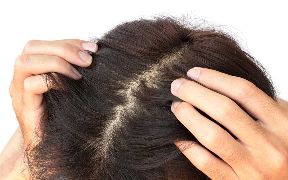 The Anatomy of the Scalp