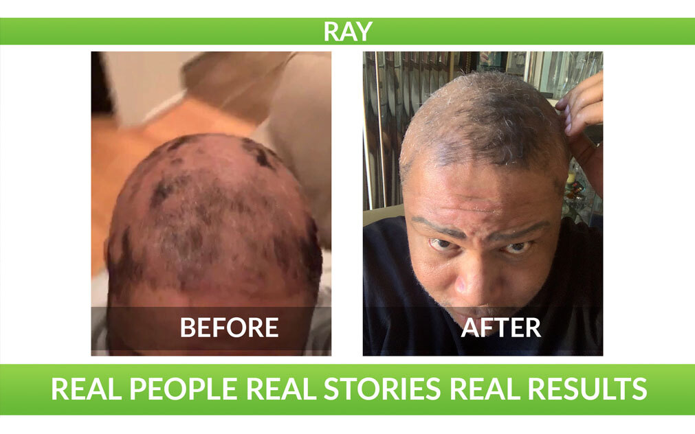 Misster Ray's Hair Regrowth Journey